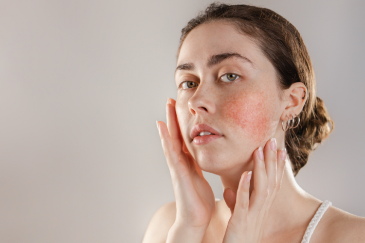 Dealing With Redness? Here Are The Common Triggers For Skin Redness & How One Can Treat It?
