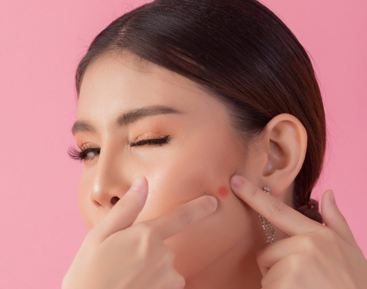 5 Skincare Products to Tackle Your Acne at Home