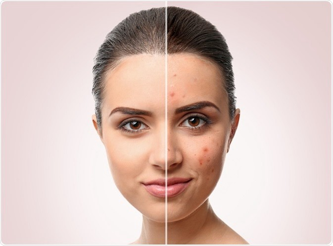 Ultimate Guide On Different Types Of Acne And Their Causes